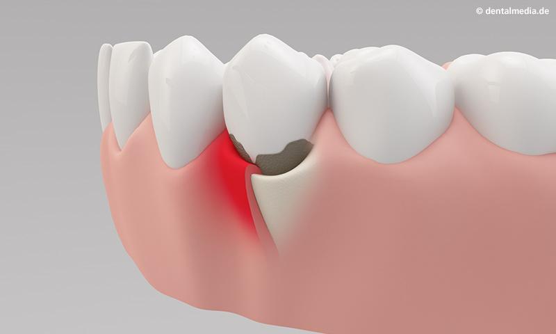 Zahnfleisch geschwollen